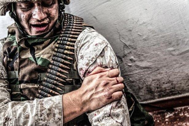 アロンアルファは戦場生まれ! ベトナム戦争でも兵士の傷の手当てに使われた/毎日雑学